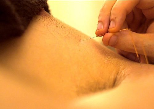 Dry Needling – Intramuscular Stimulation For Chronic Pain & Tension   ManMade Episode #2