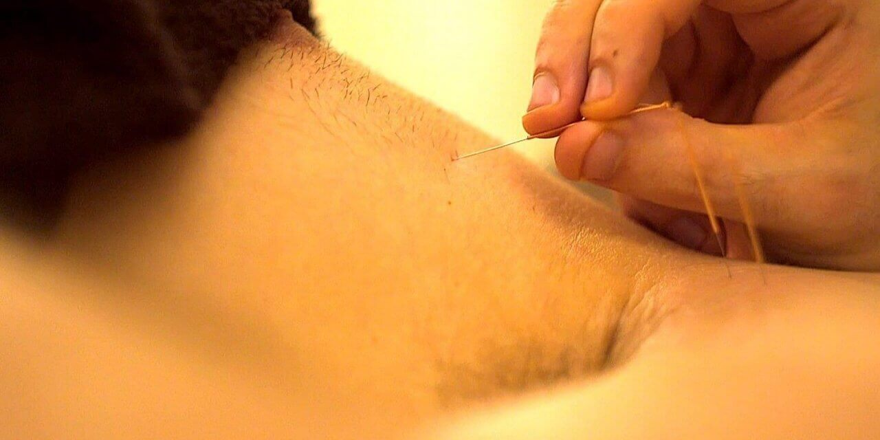 Dry Needling – Intramuscular Stimulation For Chronic Pain & Tension | ManMade Episode #2